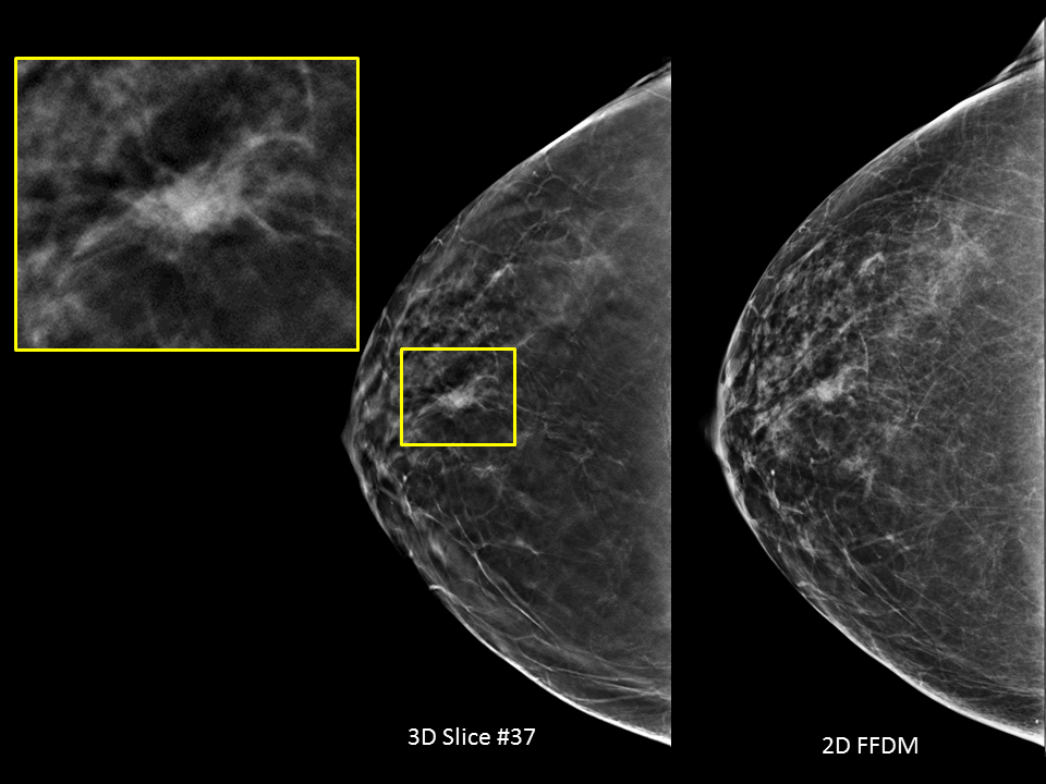 Selenia Dimensions 3d Mammography Hologic