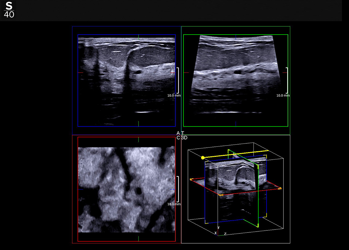 Hologic 3D clinical image