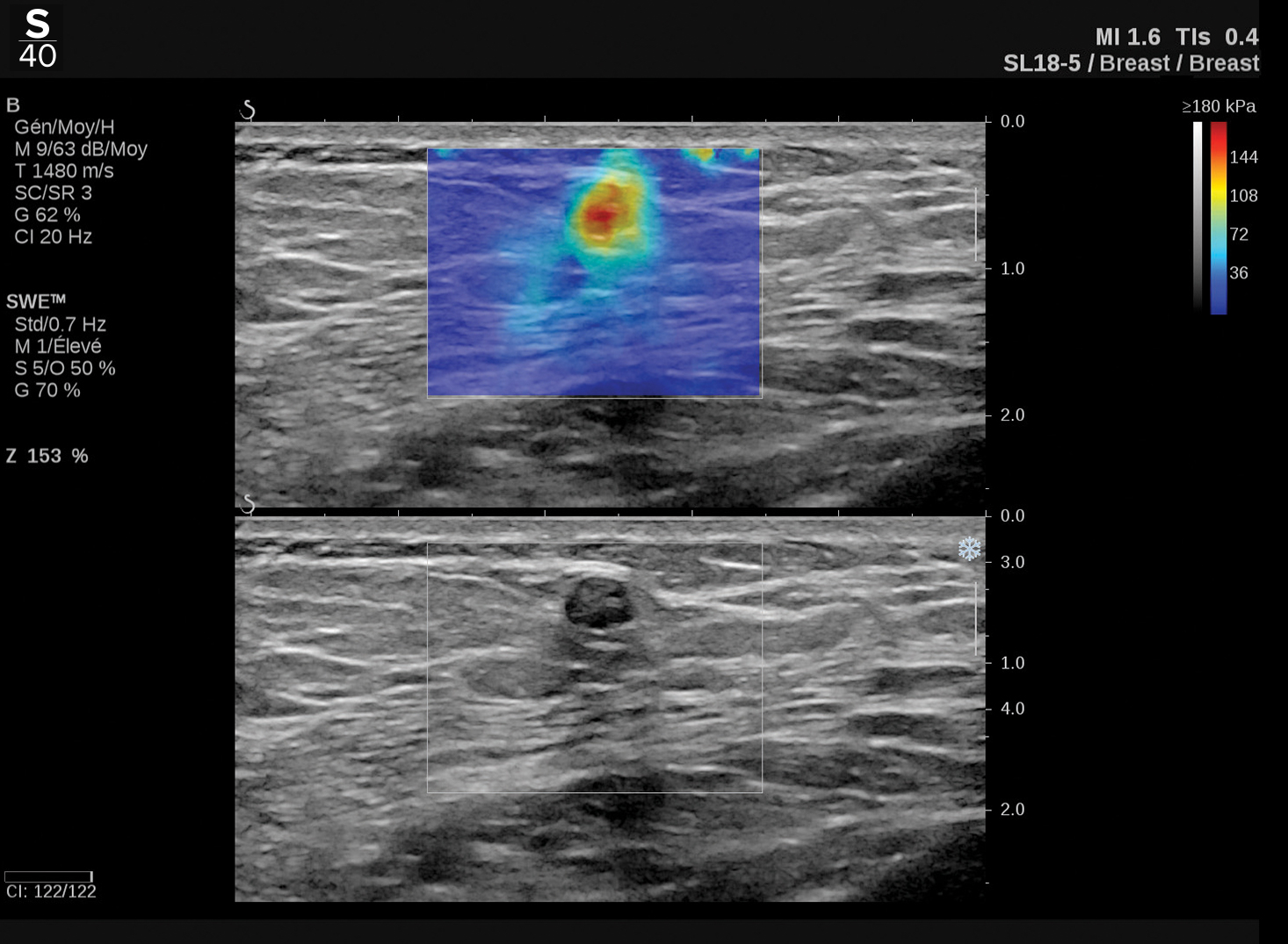 Hologic ShearWave™ PLUS elastography clinical image